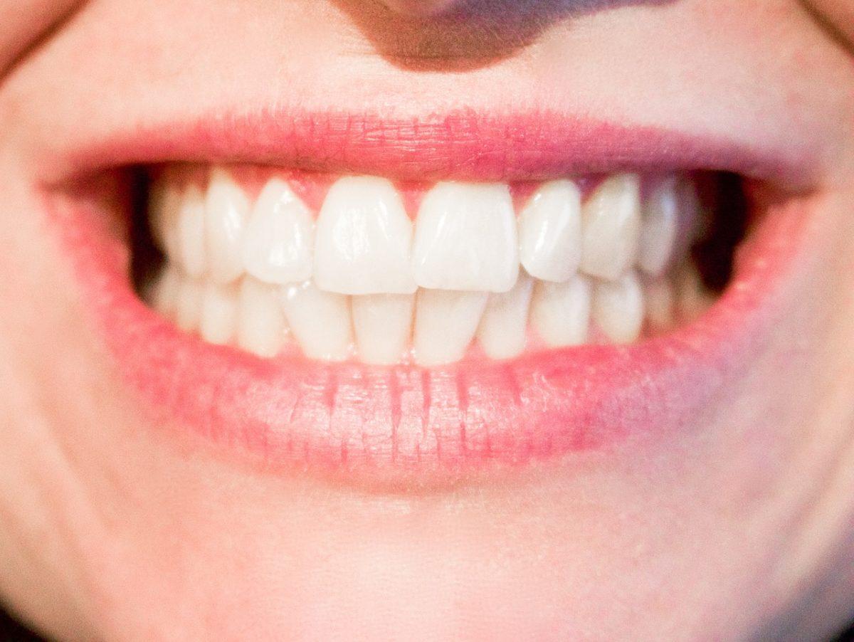 Nowoczesna technologia stosowana w salonach stomatologii estetycznej zdoła sprawić, że odzyskamy śliczny uśmieszek.